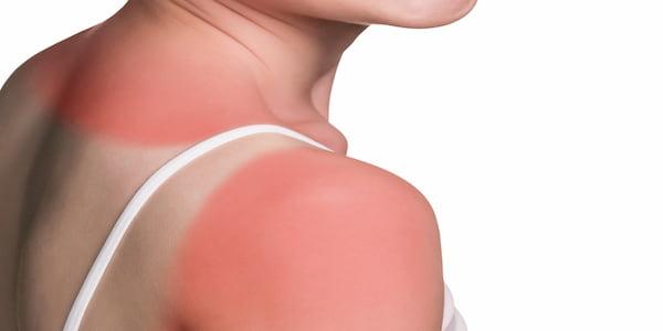 sunburn skin